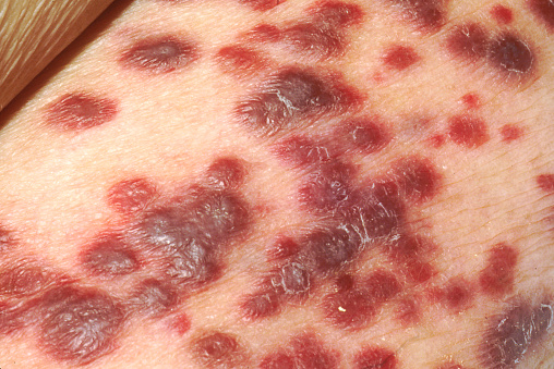 Oncology「Kaposis sarcoma on the skin of an AIDS patient.」:スマホ壁紙(0)