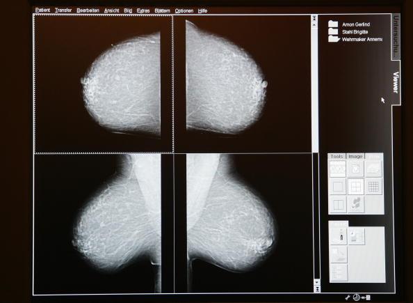 Breast「Mammamobil Offers Mobile Mammogram Service」:写真・画像(0)[壁紙.com]