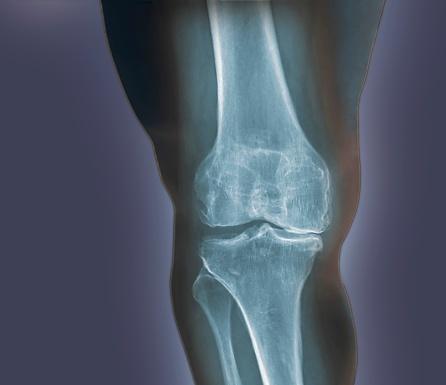 Heavy「Arthritis of the knee, X-ray」:スマホ壁紙(7)