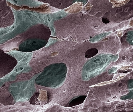 Magnification「Scanning electron micrograph (SEM) of human bone, osteoporosis」:スマホ壁紙(18)