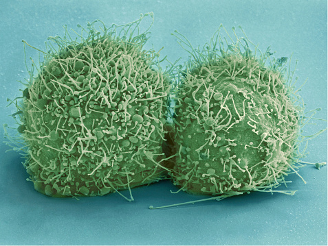 Oncology「Scanning electron micrograph of just-divided HeLa cells.」:スマホ壁紙(11)
