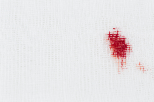 Stained「Germany, Freiburg, Surgery swab with blood, close up」:スマホ壁紙(16)