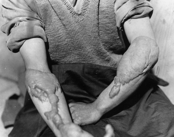 Victim「Burns Victim」:写真・画像(4)[壁紙.com]
