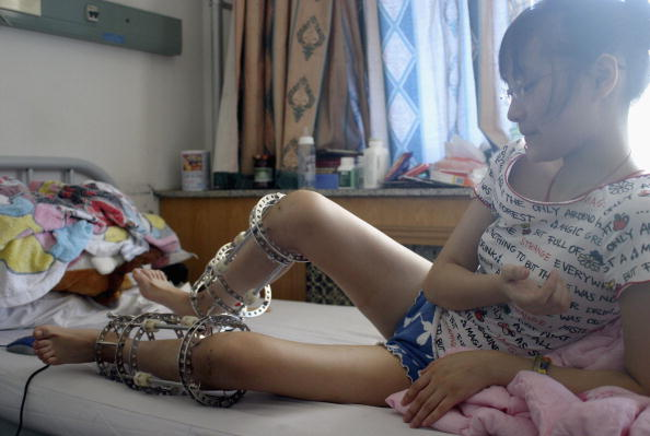 Square Shape「Surgery To Increase Height Booms In China」:写真・画像(1)[壁紙.com]