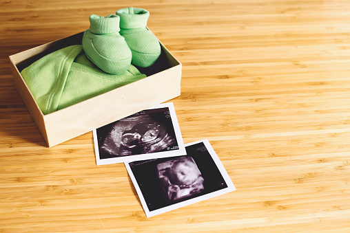 3D Scanning「Baby girl ultrasounds, normal one and 4D, next to a gift box with tiny clothes and shoes on wood」:スマホ壁紙(6)