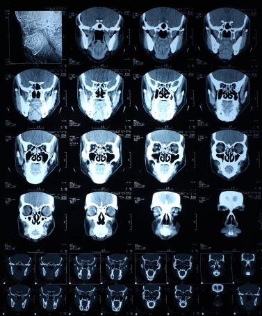 CAT Scan「head x-ray」:スマホ壁紙(19)