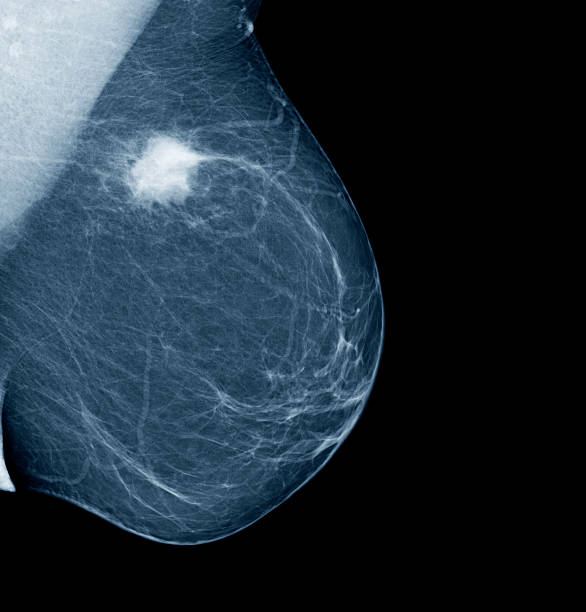 Lateral mammogram of female breast with tumor:スマホ壁紙(壁紙.com)