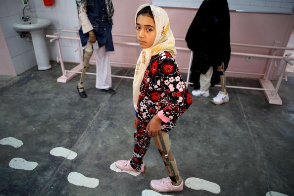 Kabul「Landmine Victims Receive Treatment At The ICRC Rehabilitation Centre」:写真・画像(9)[壁紙.com]