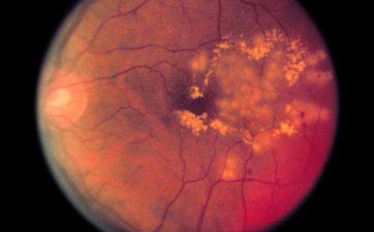 Eyesight「Laser surgery for diabetic retinopathy」:スマホ壁紙(5)
