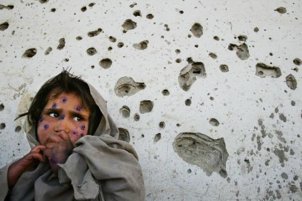 War「Lashmania Treatment In Kabul」:写真・画像(15)[壁紙.com]