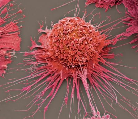 WBC「Activated macrophage, SEM」:スマホ壁紙(8)