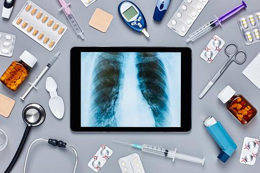Asthmatic「Digital tablet displaying chest X-ray amidst medical supplies」:スマホ壁紙(18)
