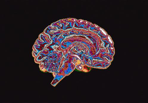 1990-1999「Cross-Section of Brain」:スマホ壁紙(0)