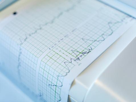 Pulse Trace「Cardiogram machine, close-up」:スマホ壁紙(16)