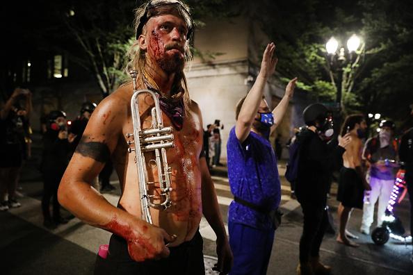 Blood「Portland Protests Continue Unabated Despite Federal Law Enforcement Presence」:写真・画像(16)[壁紙.com]