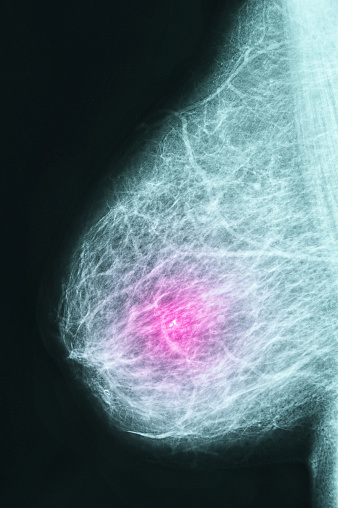 Breast「Mammogram」:スマホ壁紙(5)