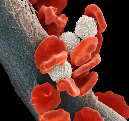 WBC「Leukaemia blood cells, SEM」:スマホ壁紙(18)