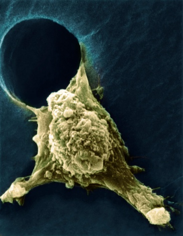 Oncology「Metastasis of cancerous cell」:スマホ壁紙(14)