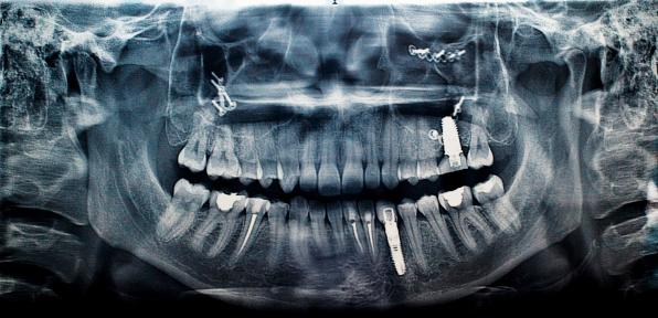 Human Skull「Implant」:スマホ壁紙(13)