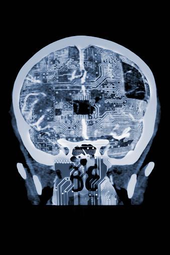 Circuit Board「Circuit board in x-ray of skull」:スマホ壁紙(15)