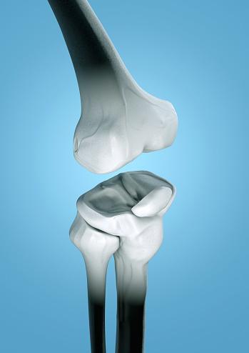 Human Bone「Human knee, illustration」:スマホ壁紙(18)