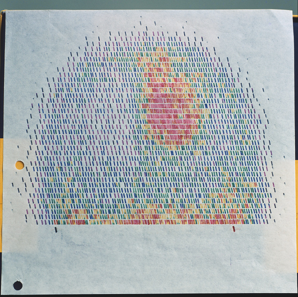 Pattern「Tumors pictured in colour」:写真・画像(12)[壁紙.com]
