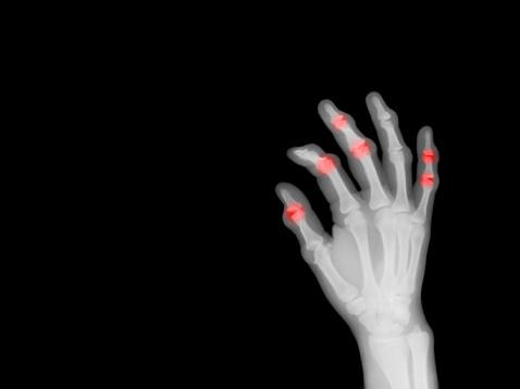 Bone「X-ray of hand showing arthritis」:スマホ壁紙(17)