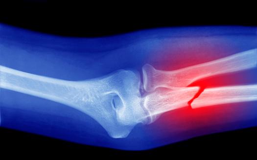 Human Bone「xray of broken arm」:スマホ壁紙(10)