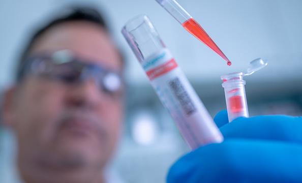 Healthcare And Medicine「Qiagen Markets QIAstat-Dx For Coronavirus Testing」:写真・画像(18)[壁紙.com]