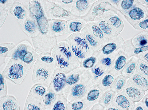 Cell Division「Microscope image of plant cells with three nuclei in anaphase」:スマホ壁紙(1)
