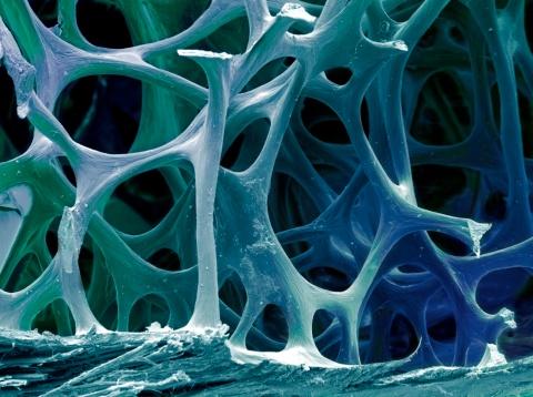Human Bone「Bone tissue, SEM」:スマホ壁紙(9)