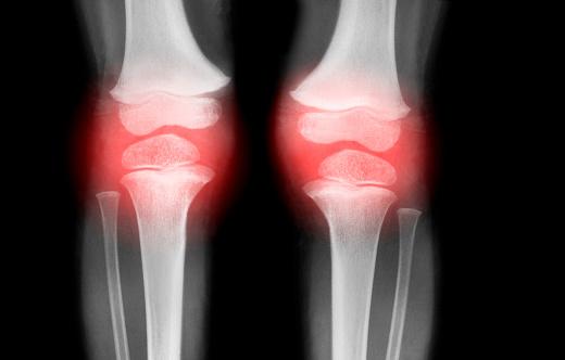 Bone「Knees with Arthritis」:スマホ壁紙(10)