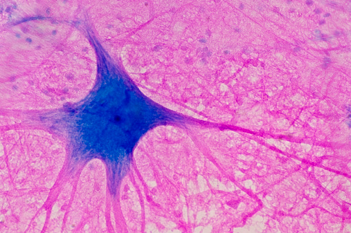 Human Cell「Motor Neuron (Multipolar) with Cell Body and many Processes (mostly Dendrites), Spinal Cord (Magnification x100). This multipolar motor neuron comes from the anterior (ventral) horn of the spinal cord grey matter. The stain is methylene blue and phloxine.」:スマホ壁紙(9)
