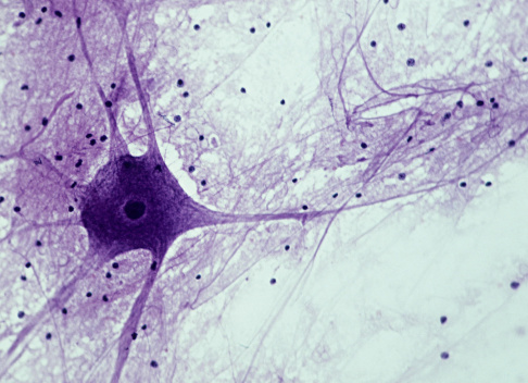 Bone「Motor neuron; Spinal Cord, 50X at 35mm. Shows: cell body, nucleus, dendrites (numerous processes attached to cell body), axon (single, long, nerve fiber), and neuroglial cells (dark spots).」:スマホ壁紙(13)
