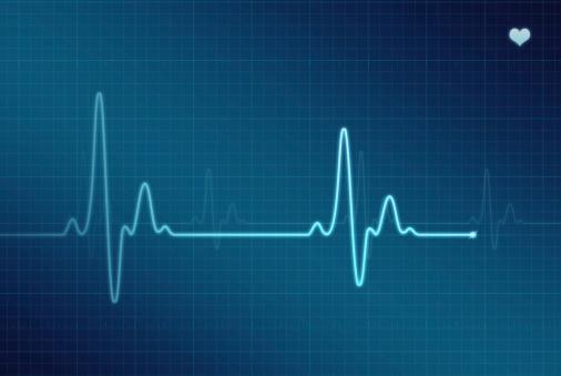 Graph「EKG - Electrocardiogram (XXL)」:スマホ壁紙(12)