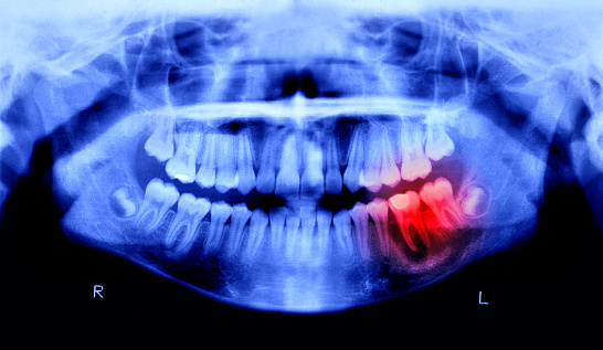 Human Skull「Toothache pain」:スマホ壁紙(9)