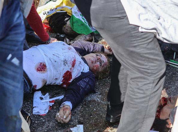 Exploding「Explosions Hit Peace Rally In Ankara」:写真・画像(11)[壁紙.com]