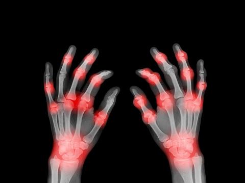 Human Bone「X-ray of painful hands」:スマホ壁紙(3)