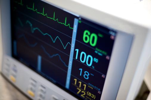 Graphical User Interface「EKG hospital medical equipment vital statistics」:スマホ壁紙(10)