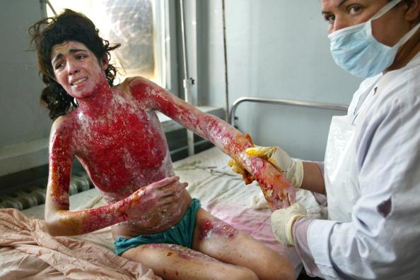 女「Desperation Drives Women To Self Immolation In Herat」:写真・画像(2)[壁紙.com]