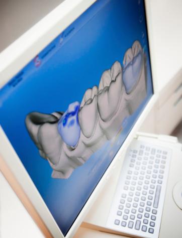 Deterioration「Digital X-ray Of Human Teeth」:スマホ壁紙(9)